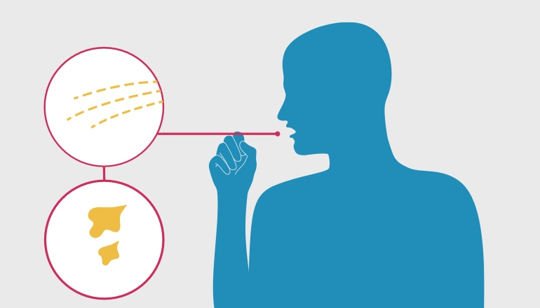 Paveikslėlis, kuriame vaizduojamas gleivėmis kosintis vyras. Tai plaučių uždegimo požymis.