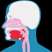 Schemoje parodyta, kaip dirgikliai patenka į kvėpavimo takus ir sukelia šlapią kosulį